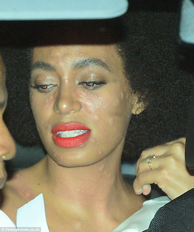 Solange had a bad allergic reaction on her wedding day